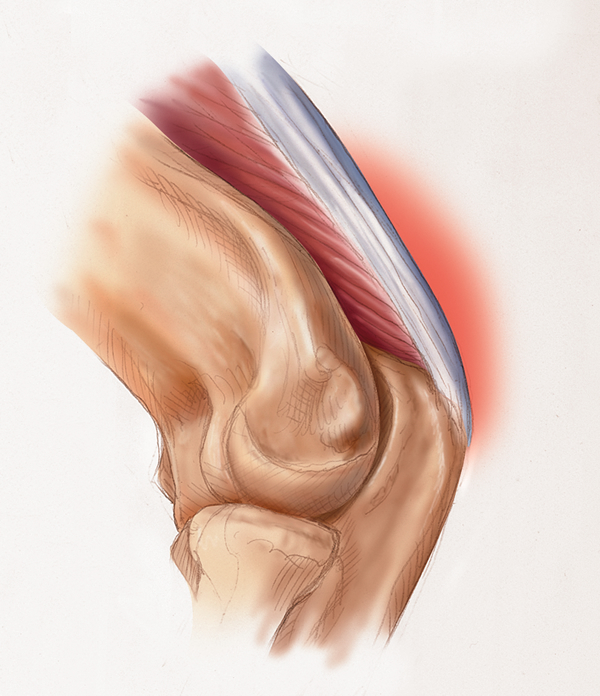 TRICEPS TENDON İLTİHABI