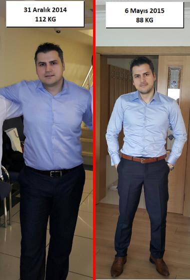 önce ve sonra Yakup Girgin